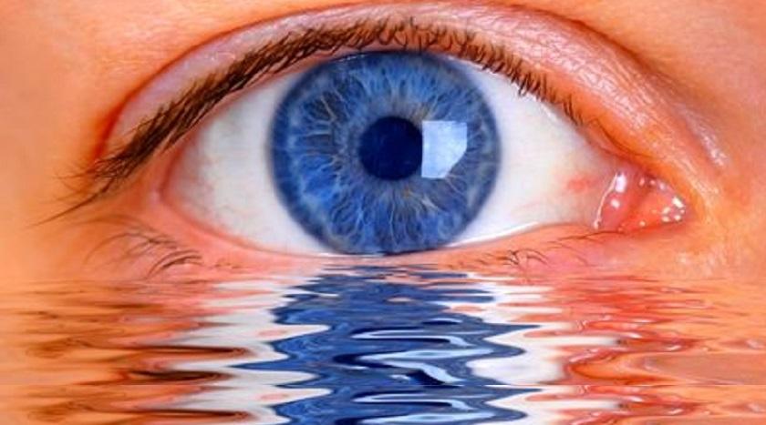 lenzen voor droge ogen